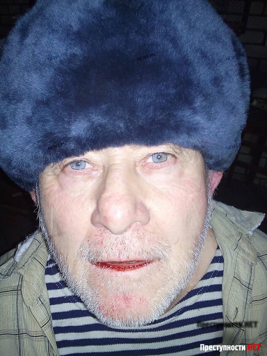 СБУ задержала мужчину, который принес на украинский блокпост банку меда со взрывчаткой - Цензор.НЕТ 3633