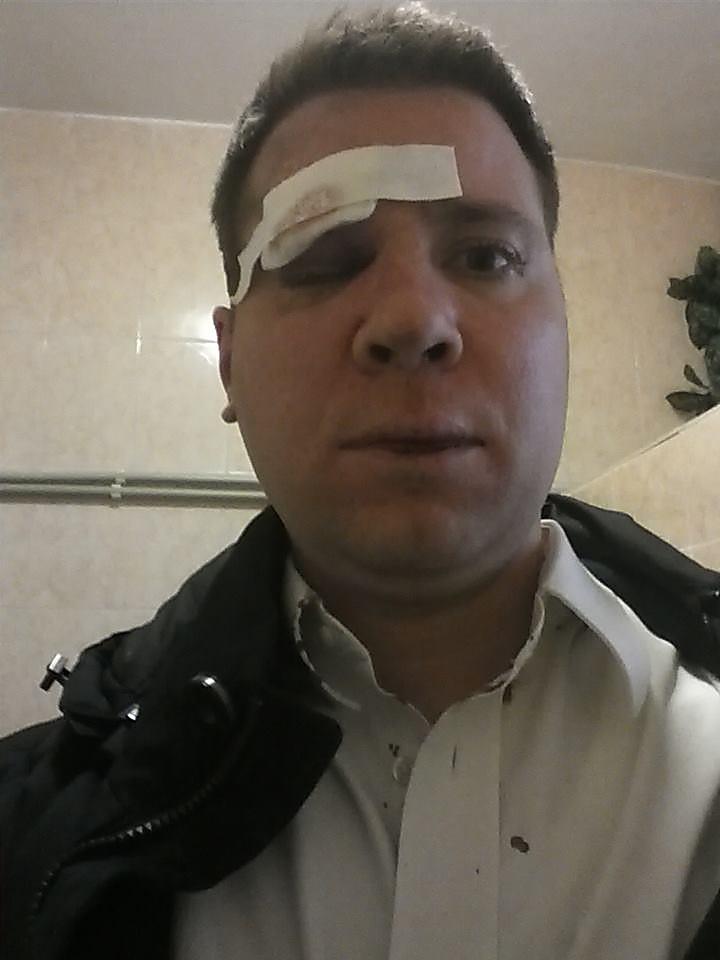 B Kpымy зa Eвpoмaйдaн избили гpaждaнинa CШA.